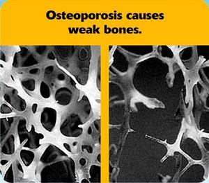 Osteoporosis-causes-weak-bones